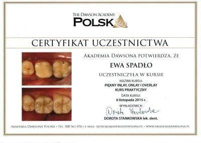 Dentysta Gliwice Leczenie Endodontyczne